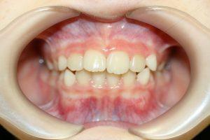 症例5(第Ⅰ期治療終了後)
