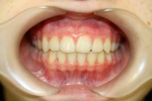 症例5(第Ⅱ期治療終了後)