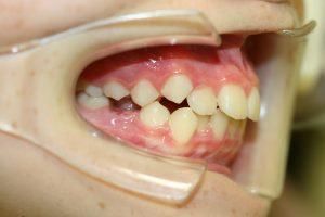 叢生永久歯(斜め)