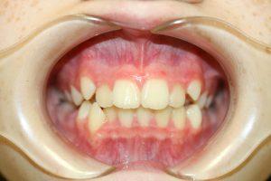 叢生永久歯